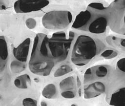 Photo of an osteoporotic bone